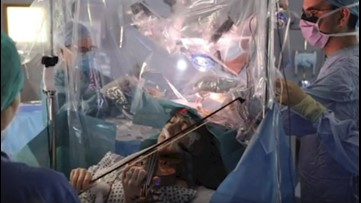 Watch this violinist play while undergoing brain surgery
