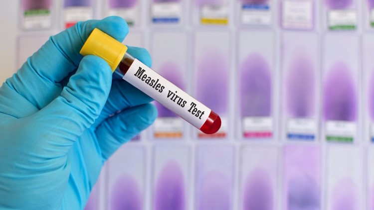 One case of measles reported in San Luis Obispo County