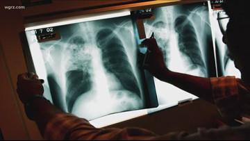 Tuberculosis case in Williamsville school district