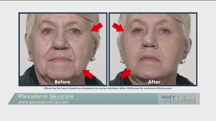 April 17 - Plexaderm Skincare