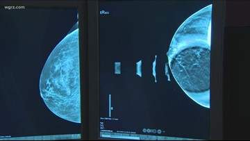 3D Mammograms: Are They More Effective?