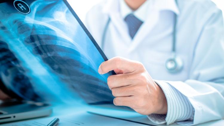 Three Lung Cancer Myths, Dispelled