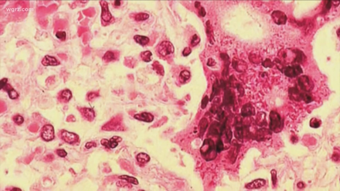 Case of measles in Erie County